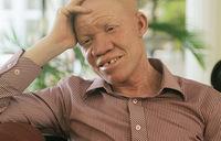Tanzanian albinos terrified after attacks
