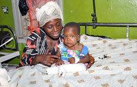 Children with deformed legs operated on successfully