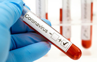 Virus may have infected nearly a fifth of S.Africans