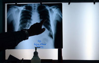 'Genes point to who develops lung disease'