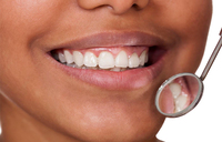 Dental caries on the rise among HIV patients