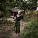 EALA warns against discrimination of albinos