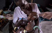 A million children severely malnourished in eastern, southern Africa: UN