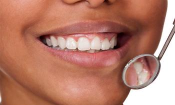 Teeth 350x210