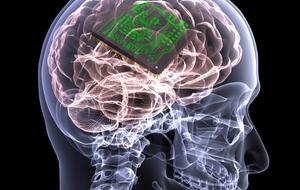 brain-chip