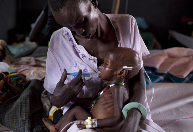 child suffering from severe malnutrition being assisted by medical staff in a medical camp run by international humanitarian organisation octors without orders in inkamman outh udan  hoto