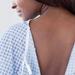 Scientists find protein that regulates skin cancer spread