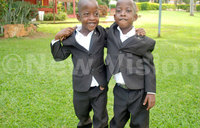 Separated siamese twins turn six today