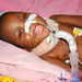 Two-year-old on life support for over a year