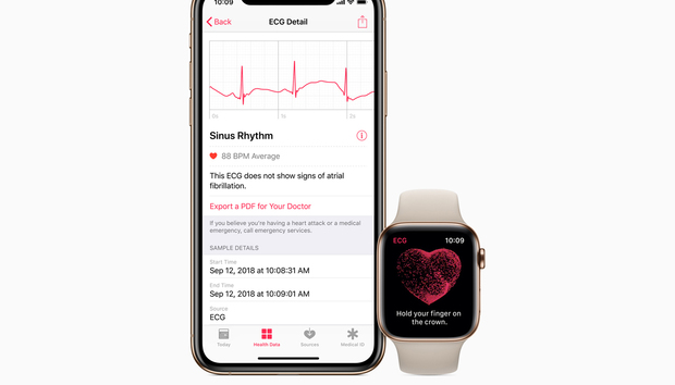 ECG for the Apple Watch Series 4 now available in watchOS