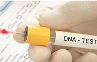 How genes dictate treatment