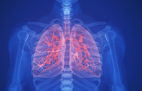 Two lung diseases killed 3.6 million in 2015: study