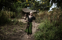 How nature and human have ganged up against albinos