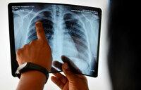 New drug slashes death rates among drug-resistant TB patients